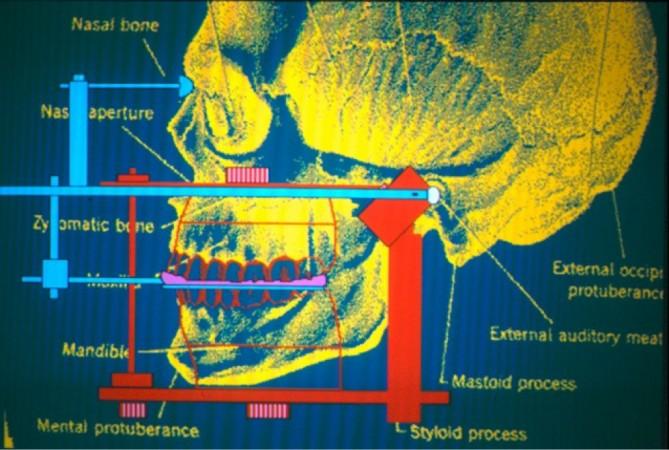 Artic crâne