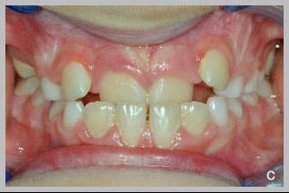 Dyskin tongue c