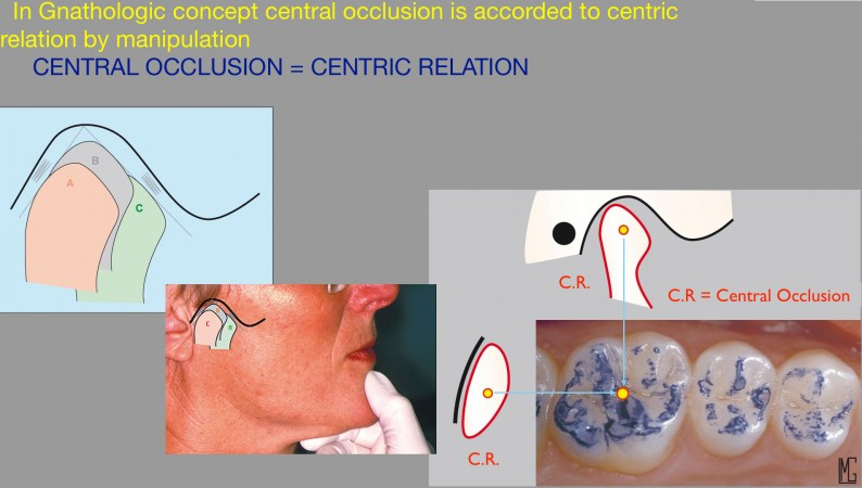 b11 a manipulation was a convenient way to find intermaxillary relationship in edentulous patients it worked because the potential recording errors was